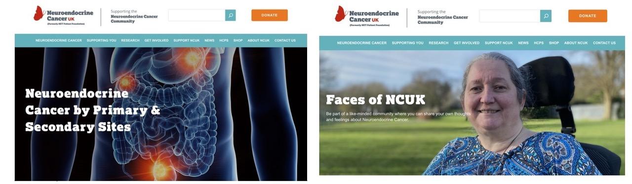 neuroendocrine cancer uk)